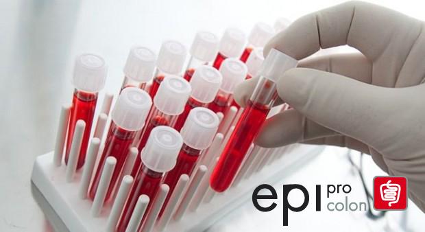 ¿En qué consiste Epi proColon?